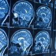 Les recherches d'Emmanuelle Wilhelm se concentrent sur le cerveau - cliquer pour agrandir